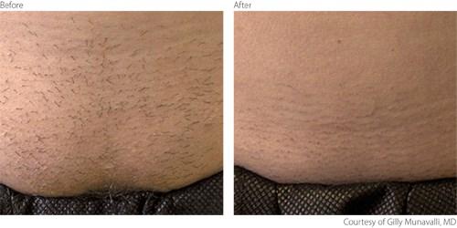 BeforeAfter-Hair-Reduction-Laser-IPL-Philadelphia-1