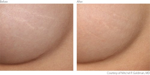 Before and after laser stretch mark removal