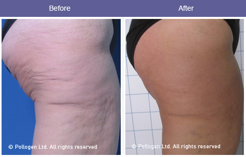 Cellulite Before and After 2