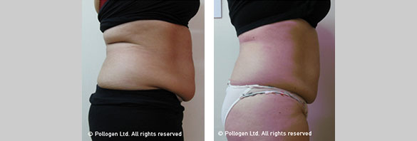 Before and after RF body Contouring